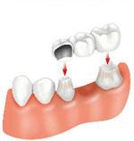 bridge , Dental Bridges