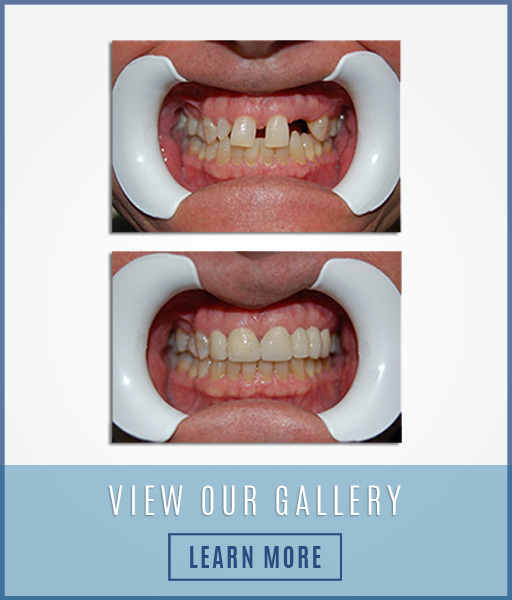 Dental Tooth Repair , Family Dental Care