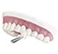 veneers , Family Dental Care