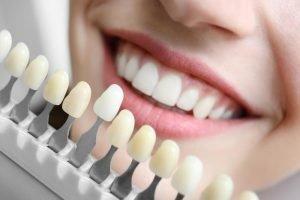Teeth Whitening Treatment in Miami