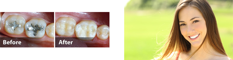 Tooth-Colored Fillings in Palmetto Bay