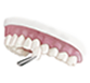 veneers , Family Dental Care