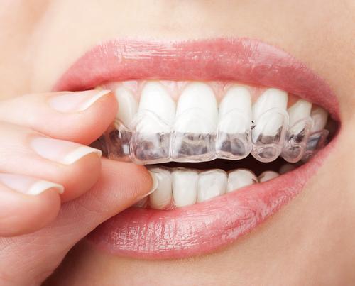 Invisalign Dentist Miami