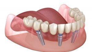 Best Dental Center in Miami