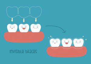 Miami Dentist Appointment