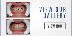 dentist-gallery-miami