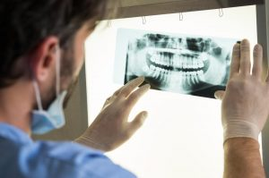 Dental X-Ray Systems