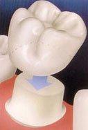 Crown1, crowns on teeth , Dental Crowns Near Palmetto Bay