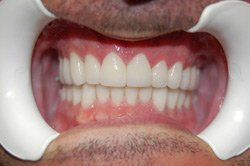 Full Mouth Reconstruction, Miami - After