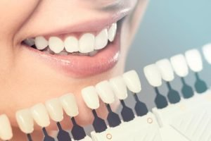 Affordable Cosmetic Dentist in Miami
