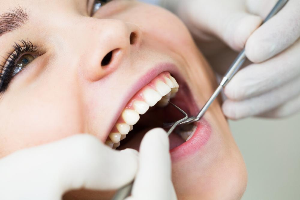 Cavity Prevention in Miami