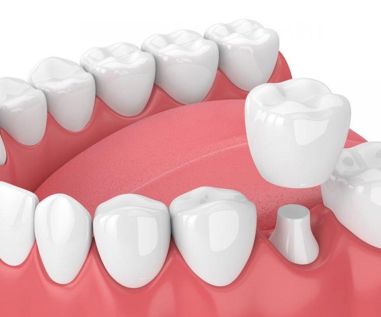 dental crowns near palmetto bay