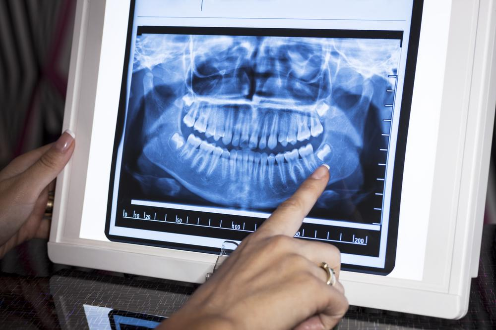 Digital X-Ray Dental