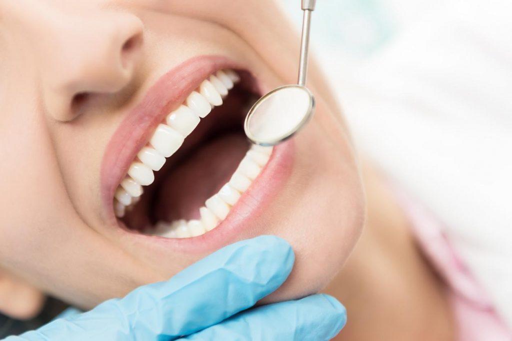 Reverse Gum Recession
