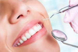 Teeth Whitening in Miami