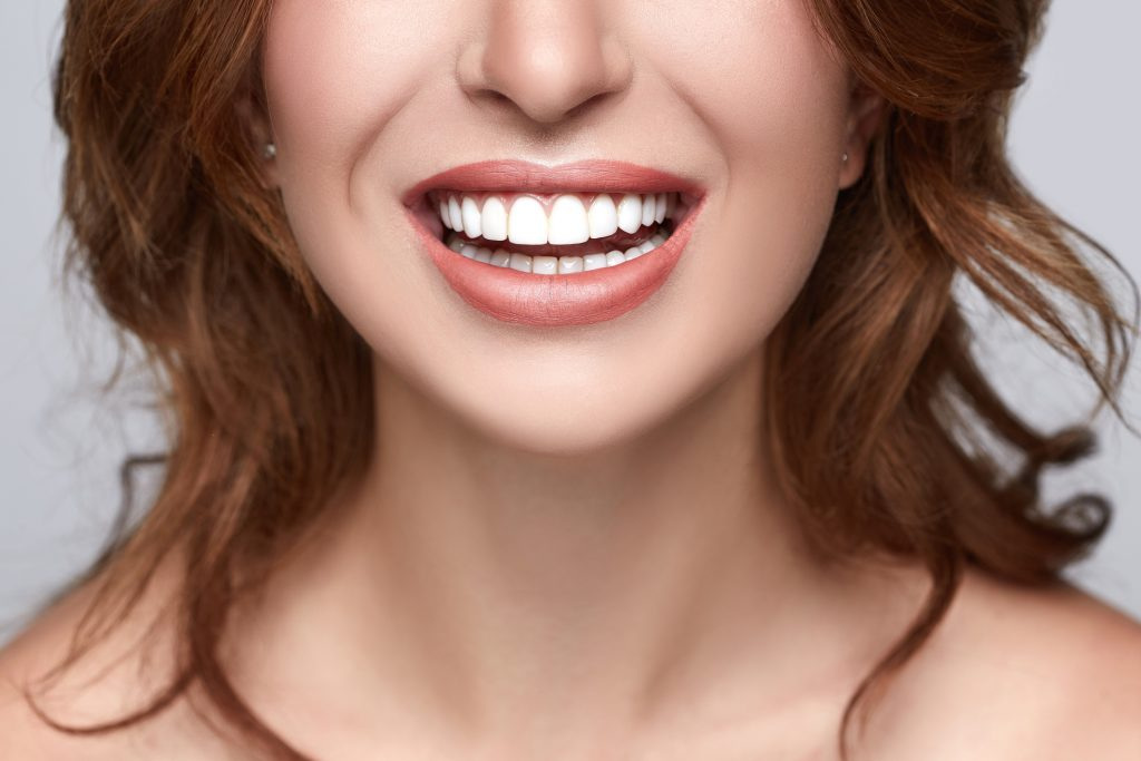 dental veneers in Miami
