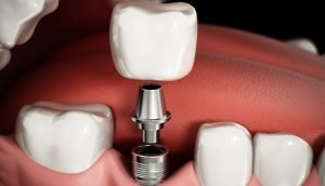 How to Find a Dentist for Implants