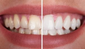 Teeth Whitening Near Country Walk