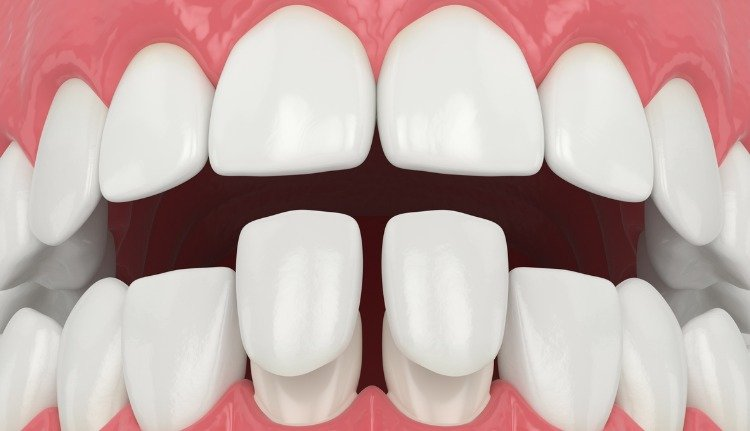 Veneers in Cutler Bay
