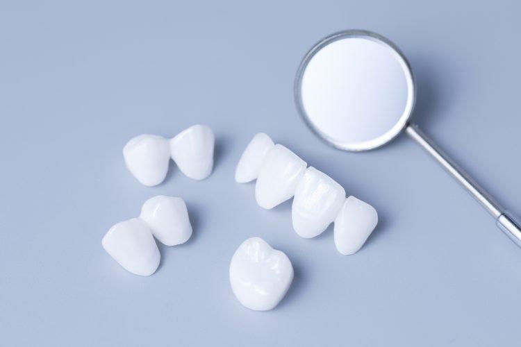 Dental Veneers in Palmetto Bay