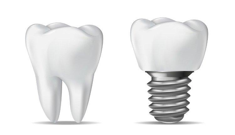 Dental Implants in Miami